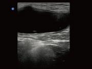 Ultrasound image of a Canine Bladder taken on the Ebit 50