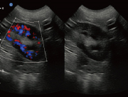 Canine Kidney B/BC Mode ultrasound image taken on the Ebit50