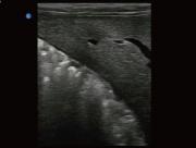Canine Liver B-Mode ultrasound image taken on the Ebit 50